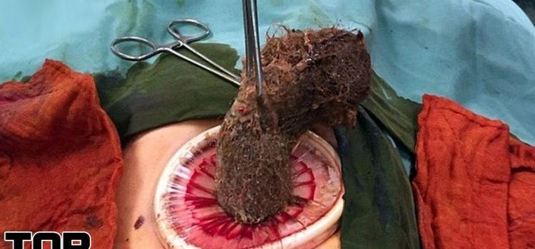 Top 10 Scariest Surgery Stories - Part 2 1